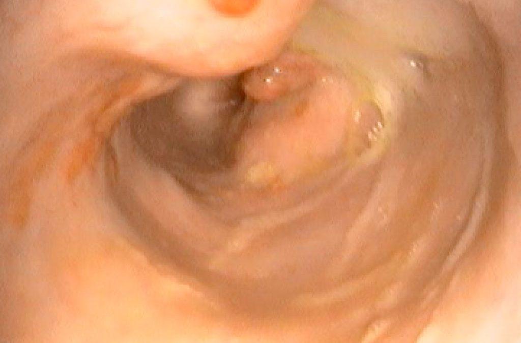 La spirocercose
